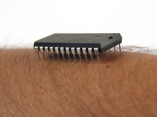 Is Implanting Chip in Your Skin a Thing?