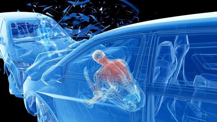 Car Accident, Car Accident Settlement
