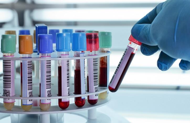 DNA Genetic Kits